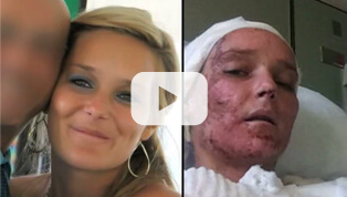 TANYA ST. ARNAULD ON HER AMAZING RECOVERY THROUGH ULTRAPULSE<sup>®</sup>