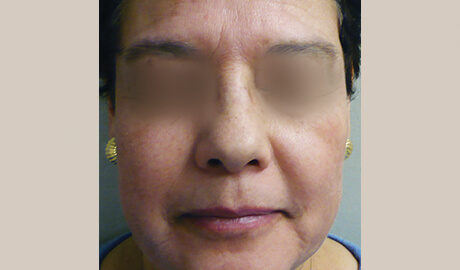 PicoFractional for skin rejuvenation - Aesthetipedia