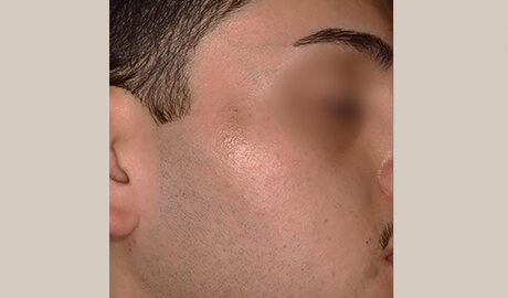 PiQo4 for pigmentation - Aesthetipedia
